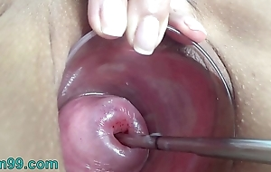 Extreme Cervix Electrosex beside recommendable depth into Womb